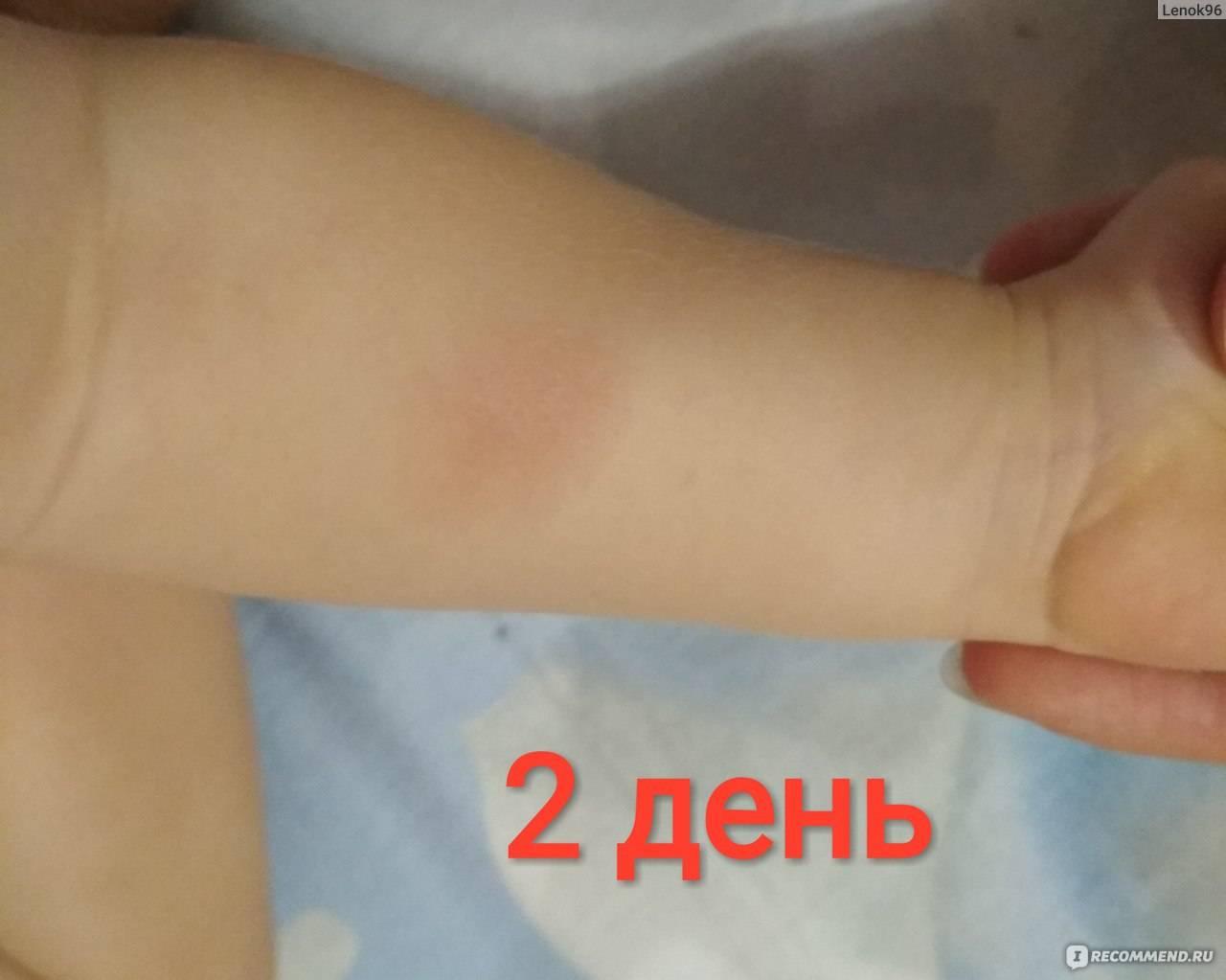 Нет реакции на манту у ребенка