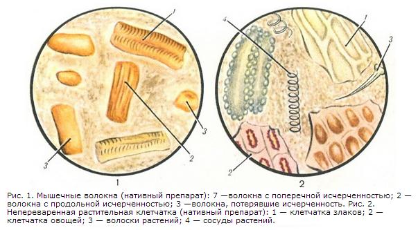 Стеркобилин в кале отрицательный у грудничка