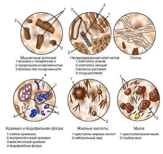 Йодофильная флора в кале у ребенка: норма и патологическая, причины, лечение