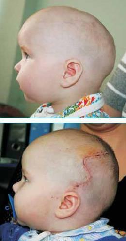 Форма головы у новорожденных: внешний вид новорожденного, голова ребёнка продолговатой формы | метки: вытянутый, фото, вытягивать, исправлять, норма