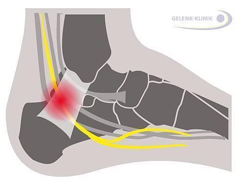 Почему болят ноги после температуры?
