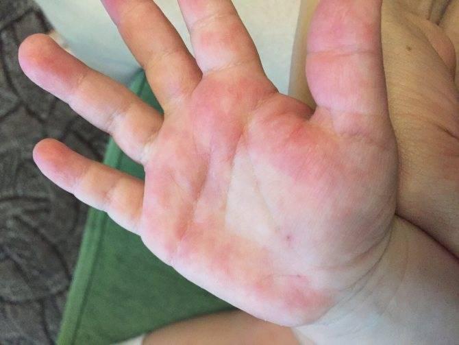 Облазит кожа на пальцах рук у ребенка: на подушечках, между пальцами