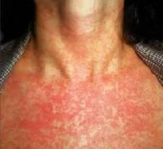 Кашель и сыпь на теле у ребенка без температуры не чешется