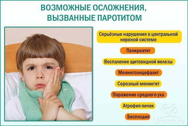 Эпидемический паротит. причины, симптомы и признаки, диагностика и лечение болезни :: polismed.com