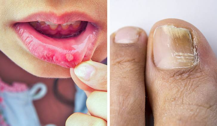 Эффективное лечение при аллергии на антибиотики