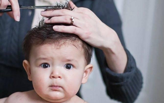 Как быть, если у новорожденного выпадают волосы?