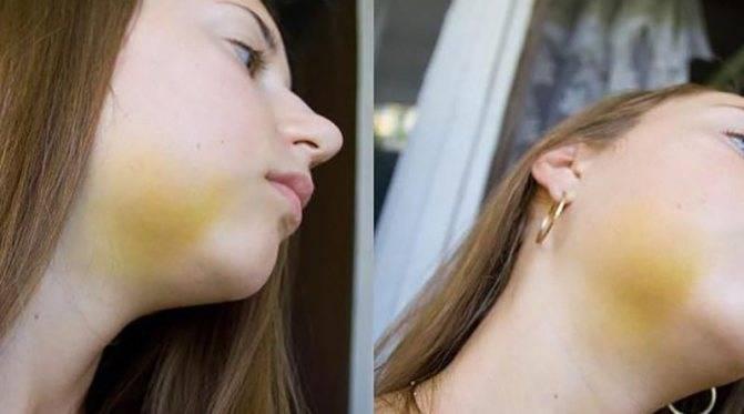 Лечение шишки на лбу от удара: что делать и как помочь ребенку?
