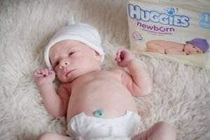 Внимание - пупок!  обработка пупка новорожденного в роддоме и дома. как ухаживать за пупком новорожденного