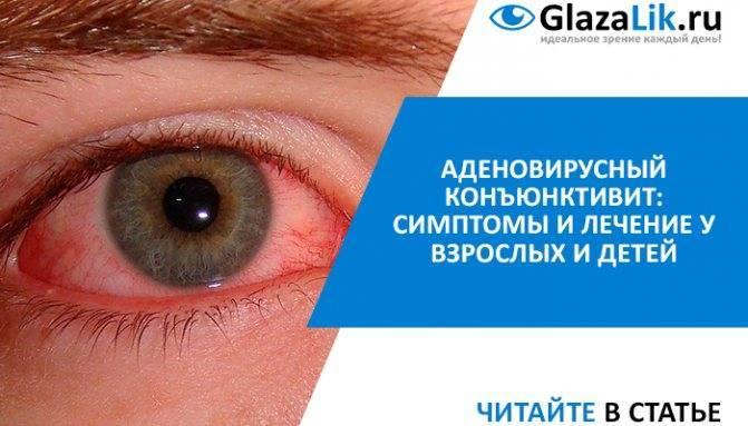 Почему у ребенка бывают синяки под глазами и какое лечение требуется