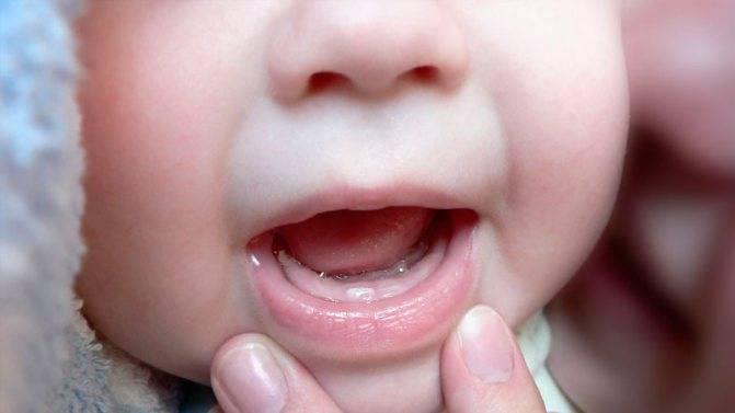Последовательность прорезывания зубов у детей. порядок и сроки прорезывания молочных зубов