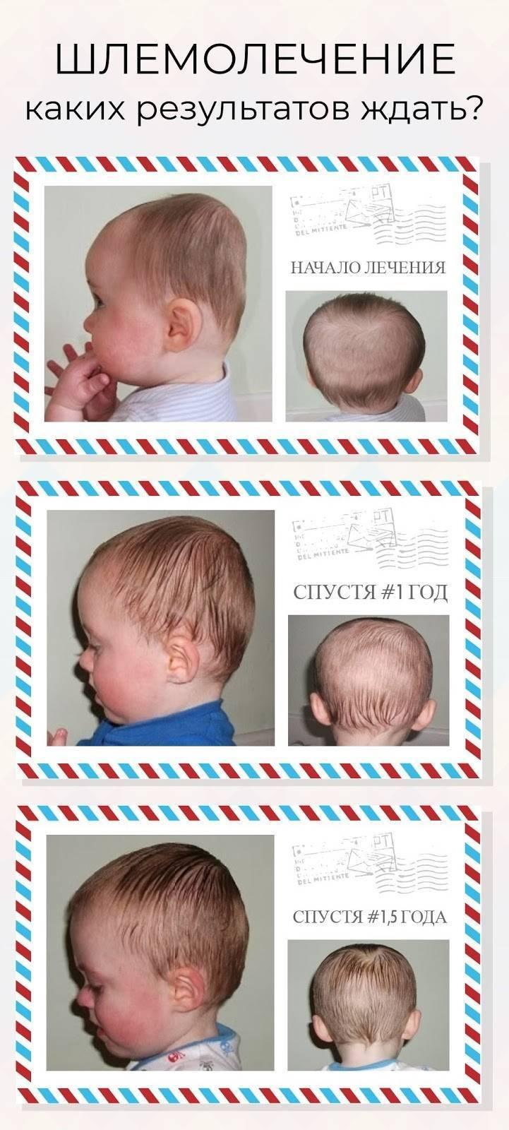Что делать, еслинеровная голова у ребенка
