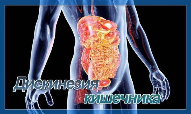 Долихосигма кишечника у ребенка - причины, симптомы, диагностика и лечение