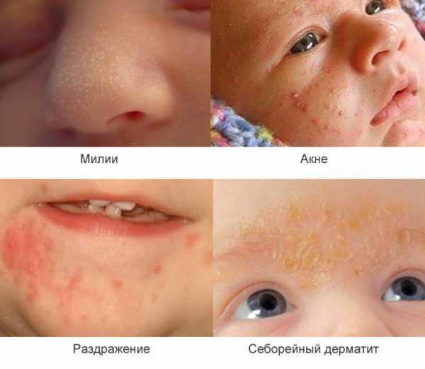 Акне новорожденных - комаровский (13 фото): что делать при высыпаниях на лице