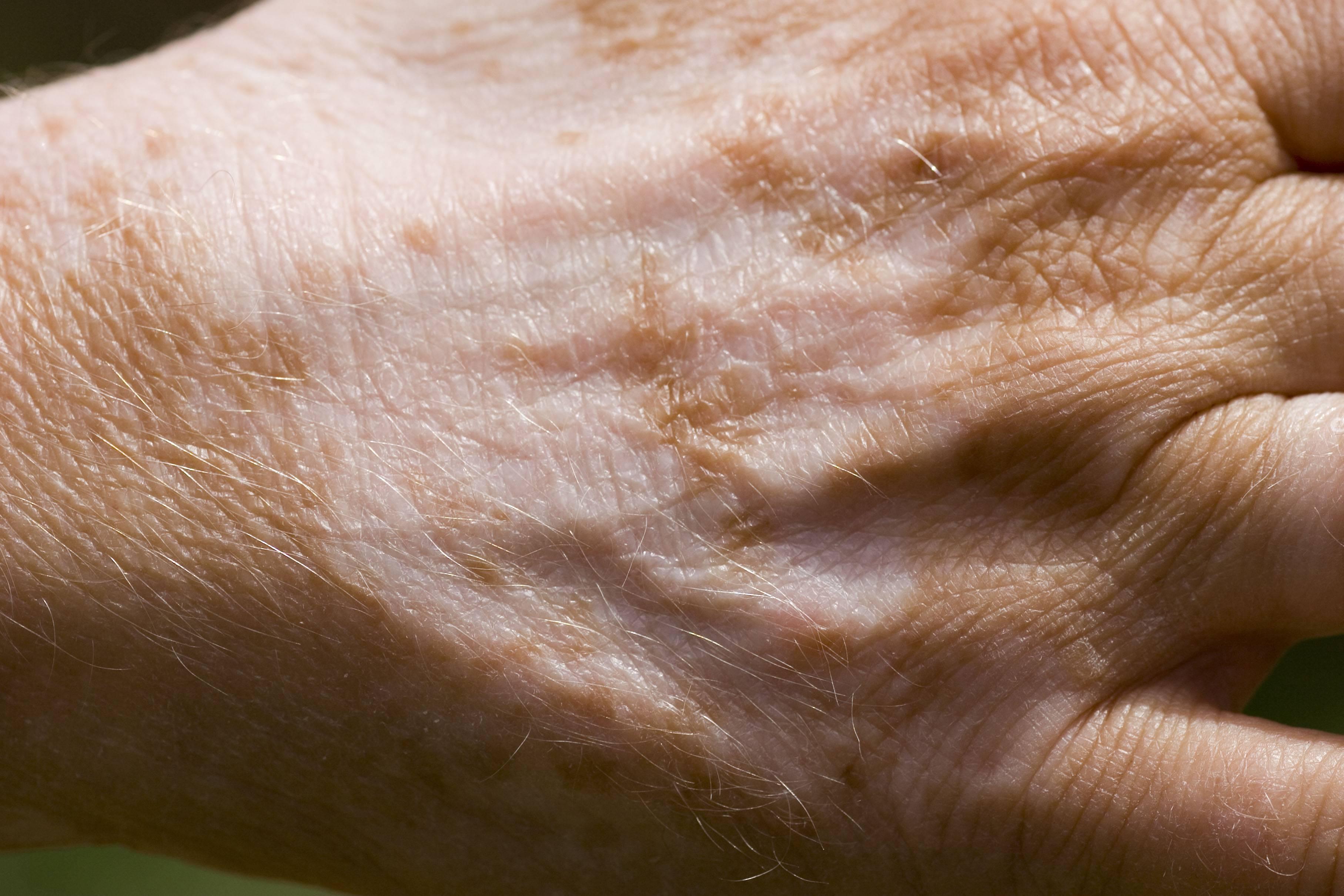 Белые пятна на коже — что это, разновидности, причины появления. как лечить у взрослых и детей