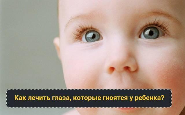 Жёлтые сопли у ребёнка: причины появления и лечение