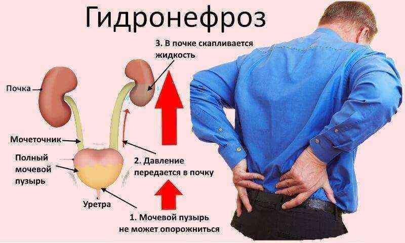 Гидронефроз у новорожденных