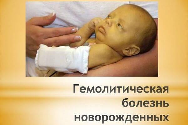 Гемолитическая болезнь новорожденных, физиологическая желтуха