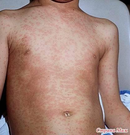 Что делать, если появилась сыпь по всему телу у ребенка, а температуры нет?