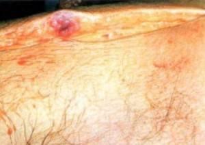 В крови плазматические клетки: что это значит, причины, как лечить