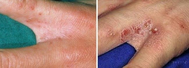 Сыпь по всему телу без температуры у ребенка (41 фото):  причины с пояснениями, красная мелкая сыпь и зуд