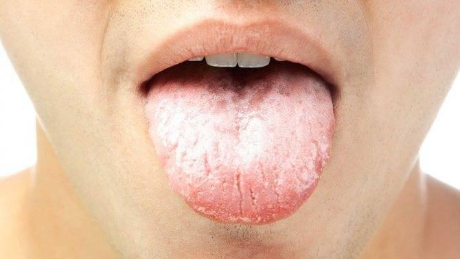 Причины появления красных точек в горле