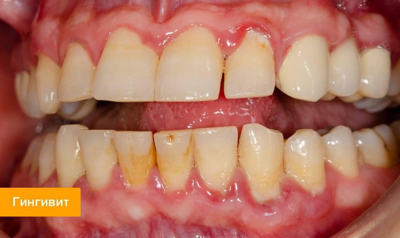 Шишка на десне: что делать, если появилась над зубом, под коронкой или между десной и щекой, твердая, как кость и другие виды