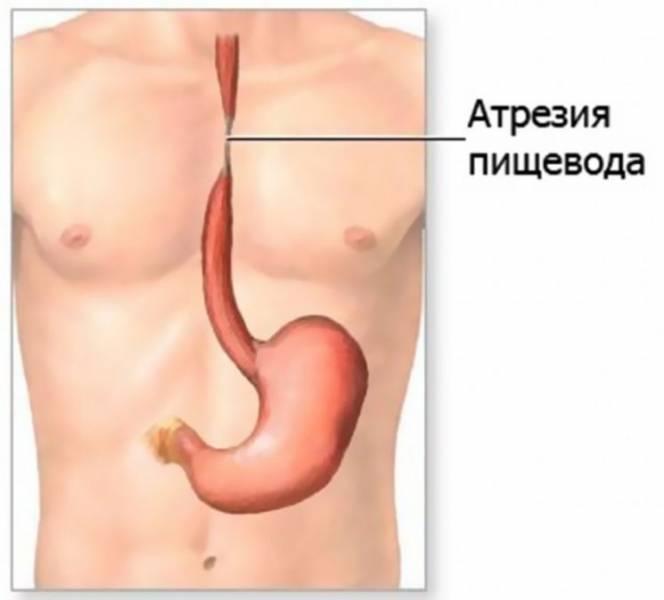 Врожденная атрезия пищевода у новорожденных, симптомы и лечение