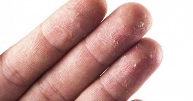 Почему может появиться сыпь на руках у ребенка и что делать?