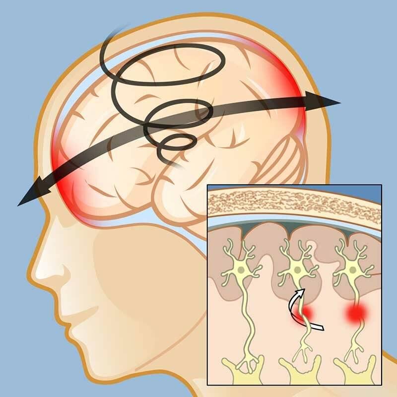 Какие характерные признаки могут указать на сотрясение мозга у ребенка и не допустить серьезных осложнений