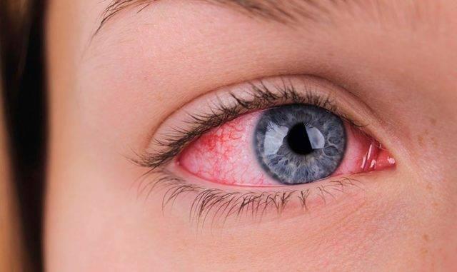 Покраснение вокруг глаз причины и лечение у ребенка