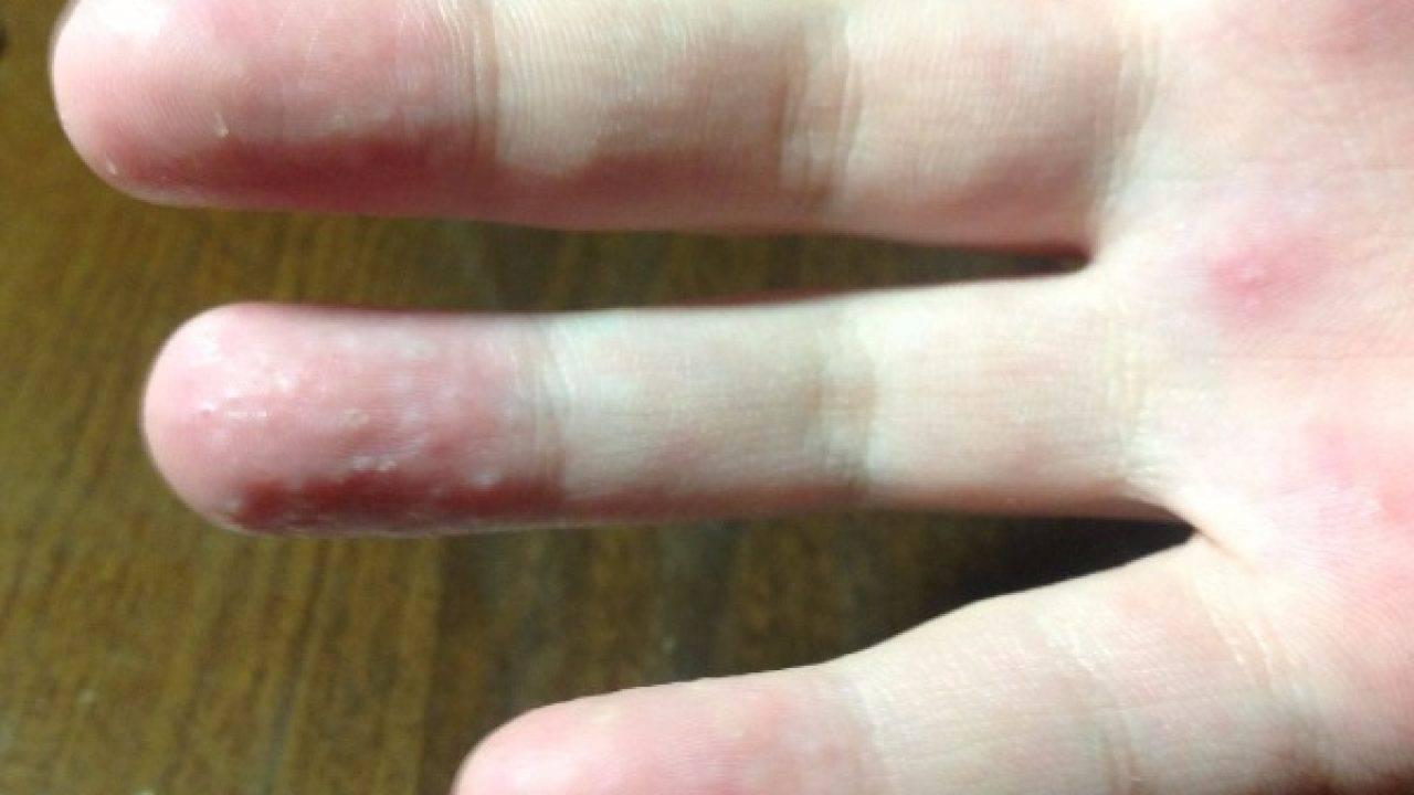 На руках появляются пузырьки. причины появления волдырей на пальцах рук у ребенка