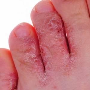 Облазит и слезает кожа на пальцах ног у детей: причины и лечение