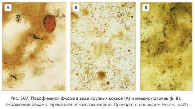 Йодофильная флора у ребенка в кале — норма бактерий для младенцев