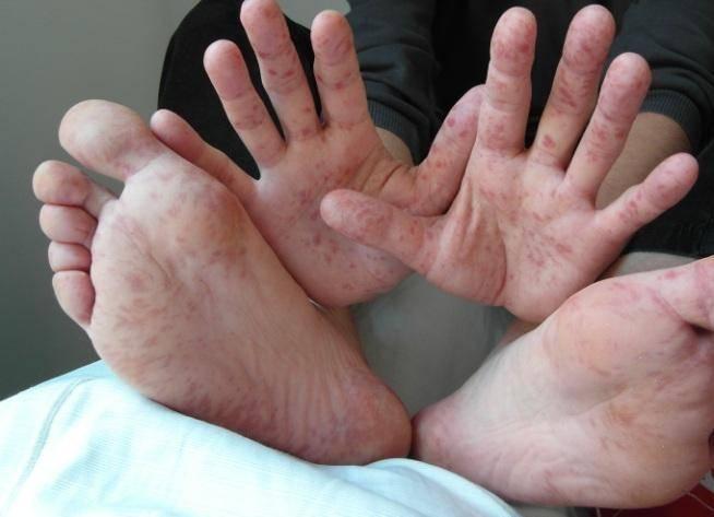 Сыпь на руках у ребенка (25 фото):  причины мелких высыпаний с пояснениями, между пальцами