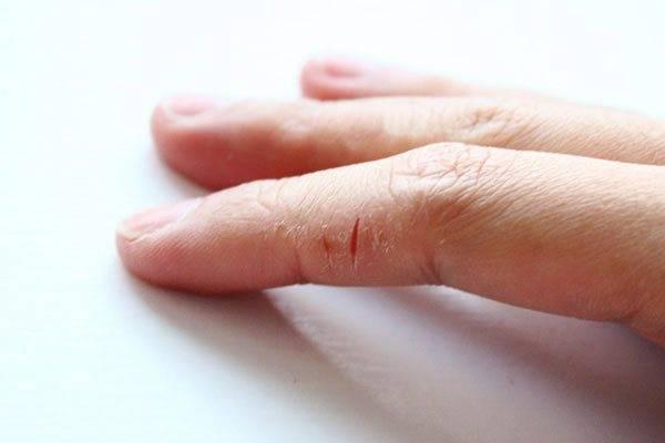 У ребенка облазиют подушечки пальцев на руках причины и лечение