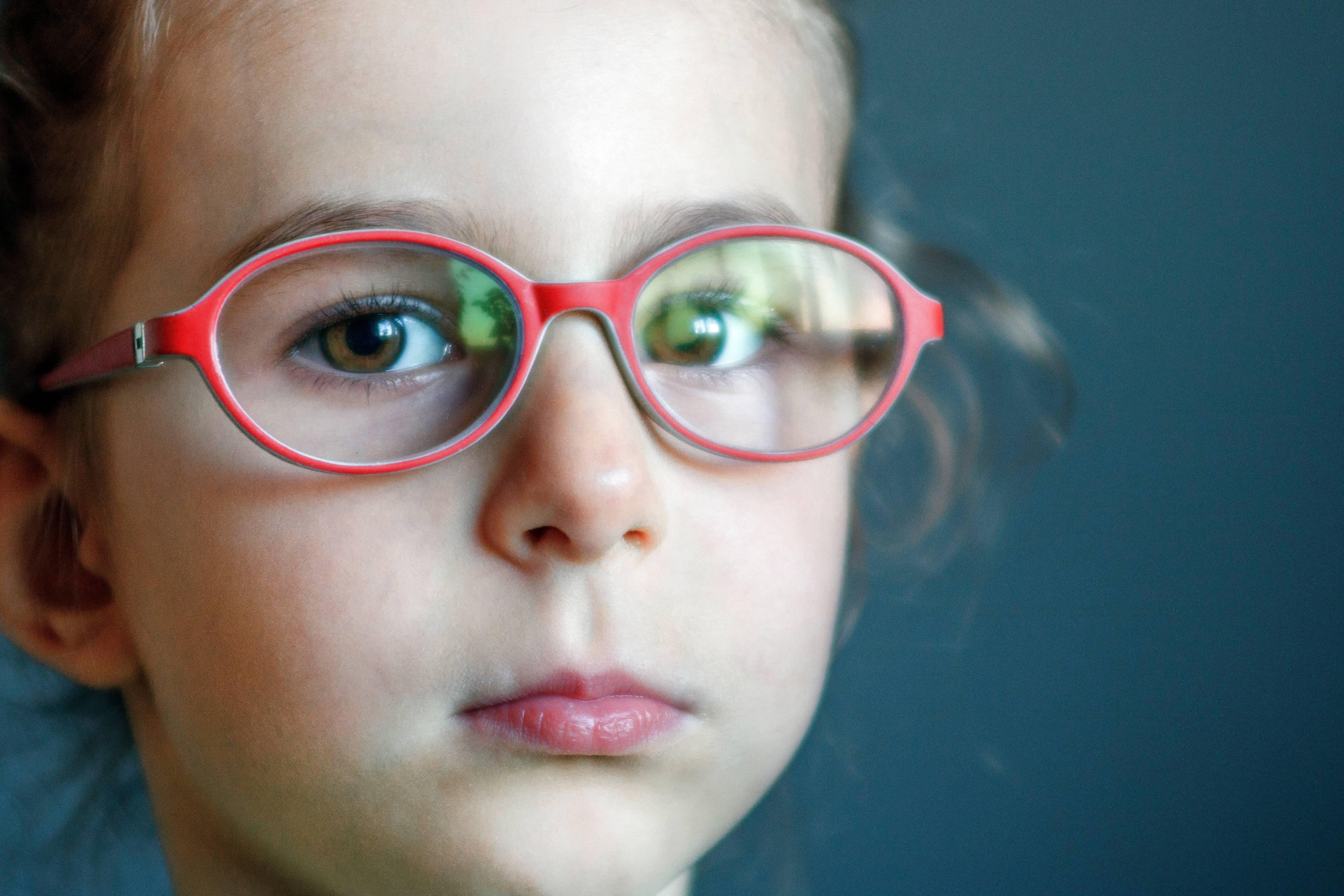 Астигматизм у детей: причины, симптомы, лечение очками и линзами