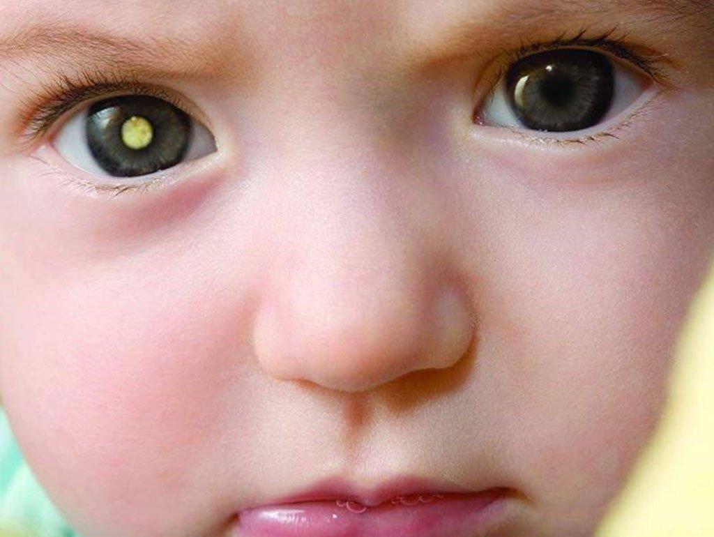 Причины и лечение ангиопатии сетчатки глаз у ребенка