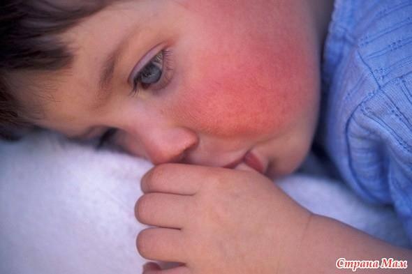 Симптомы, лечение и профилактика кори у детей