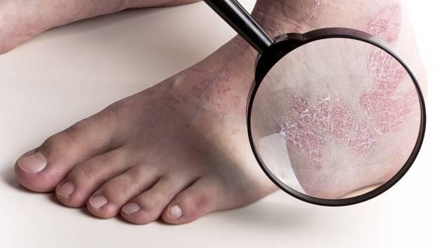 У ребенка шелушатся стопы, облезает кожа на ногах: причины и лечение