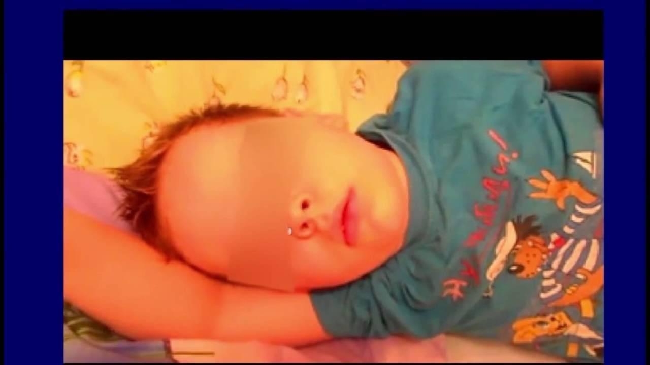Особенности апноэ сна у новорожденных