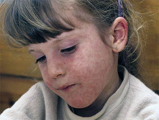 Признаки кори у ребенка младше года, возможные симптомы