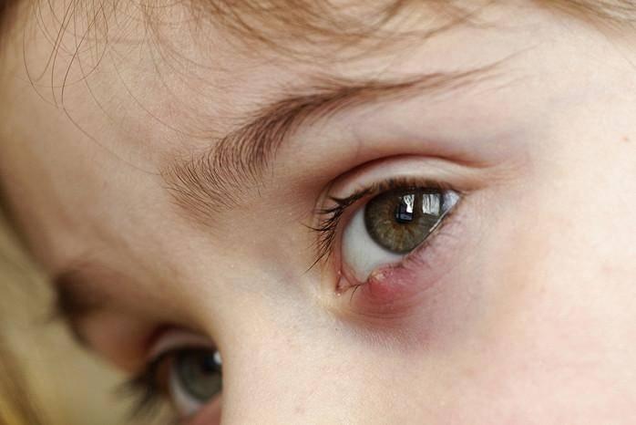 У ребенка под глазом белый прыщик
