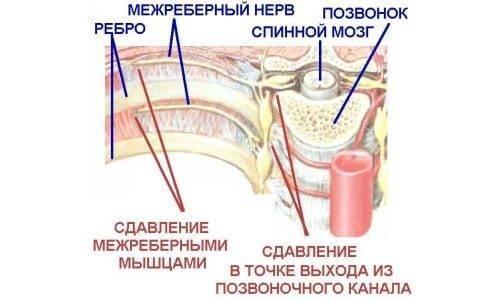 Болит в левом боку ниже ребер — что это может быть?