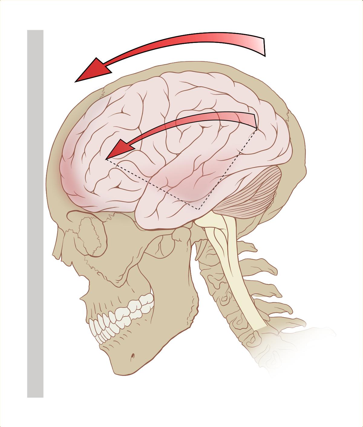 Сотрясение мозга у ребенка — симптомы