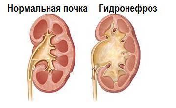 Гидронефроз 1 степени у новорожденного