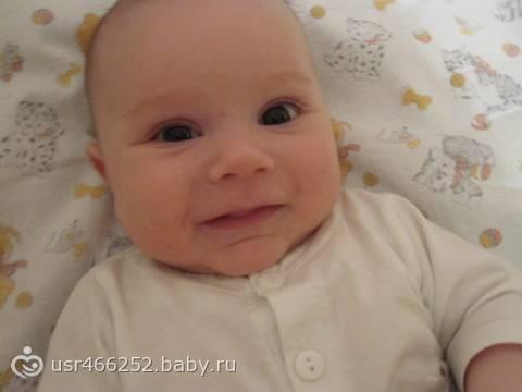 Разный размер зрачков у ребенка: причины анизокории, когда один зрачок больше другого, у грудничка или новорожденного, после падения