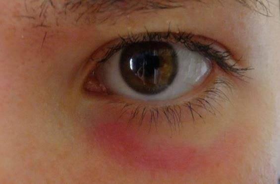 Краснота под глазами у ребенка: причины появления красноты и пятен